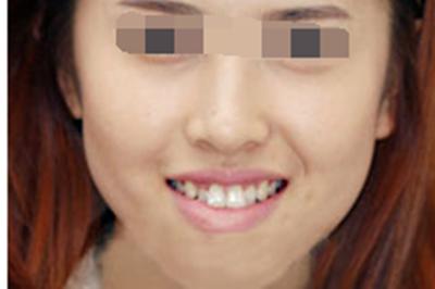 北京整形医院牙齿矫正案例分享