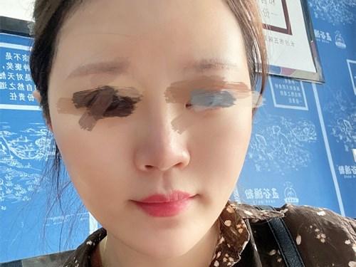 杭州整形医院自体脂肪全面部填充效果分享