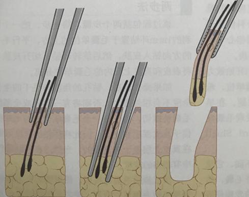 毛发移植的毛囊存活率高吗