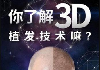 3D植发技术好吗