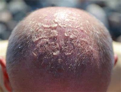 如何保护头皮免受阳光伤害