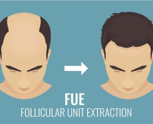 微针植发和FUE植发哪个好