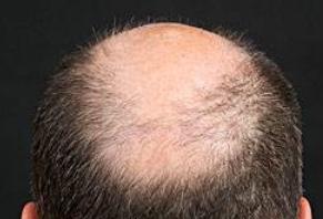 秃顶后毛囊就闭合了吗