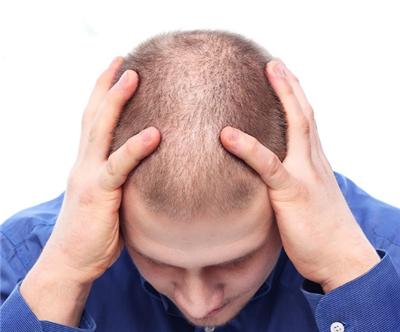 男性脱发如何治疗