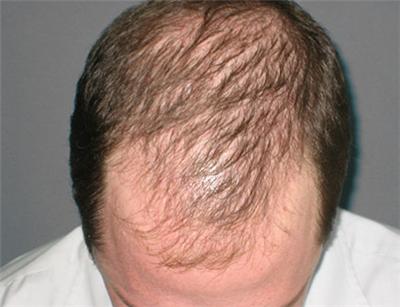 雄激素性脱发和什么疾病有关