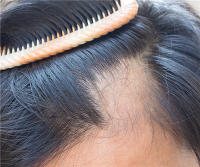 为什么雄性激素会导致脱发