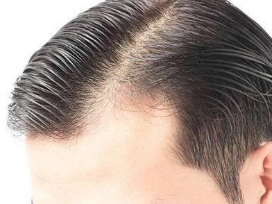 生姜治疗脂溢性脱发有效吗