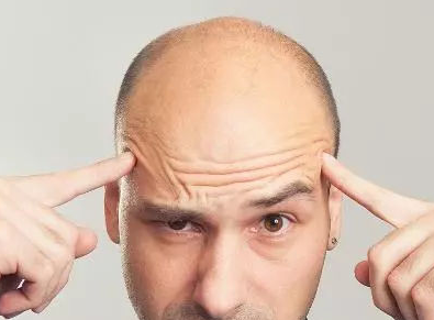 秃顶怎么治好,价格怎样