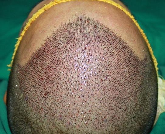 植发为什么只能用自己的毛囊呢