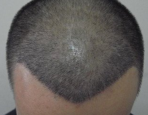 为什么植发会失败,植发修复手术怎么进行呢