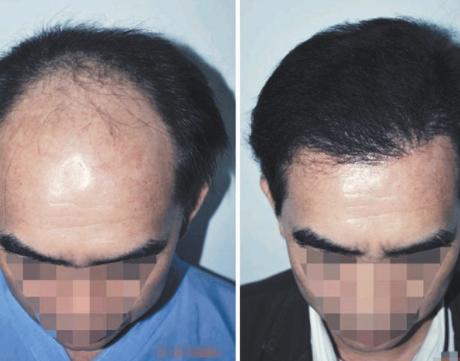 植发修复手术有风险吗