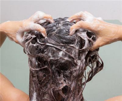 防脱发洗发水能防脱发吗