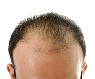 如何反击稀疏的头发