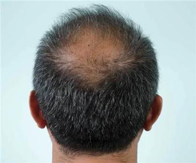 什么导致了男性脱发
