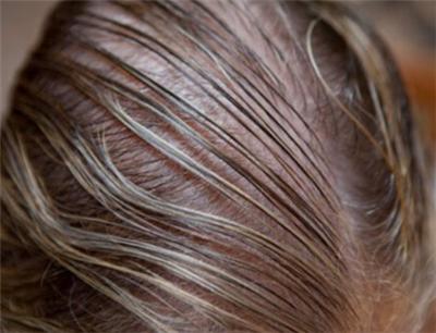 女性脱发是严重的问题