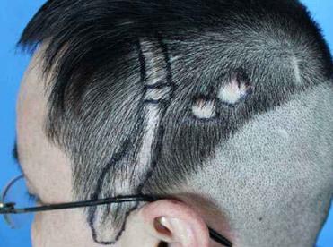 头上有疤痕植发有用吗