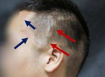 手术疤痕可以植发吗