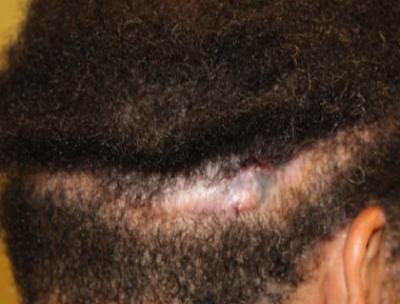 火烧疤痕植发成活率