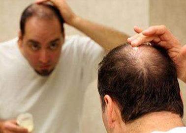 激素治疗脱发的效果怎样,会有危害吗