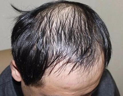 激光治疗脂溢性脱发的效果如何